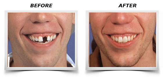 Options for replacing missing tooth - Temporary Cosmetic Tooth
