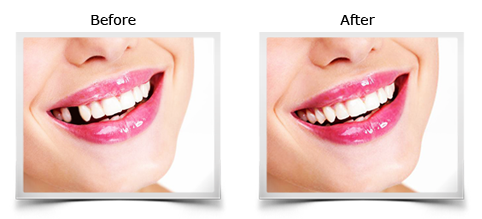 Temporary cosmetic tooth diy solution for a missing tooth solutioingenieria Images